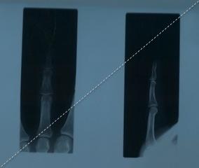 X-rays レントゲン写真 : 指